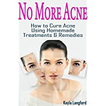 No More Acne: How to Cure Acne Using Homemade Treatments & Remedies