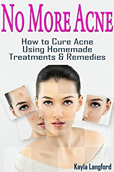 No More Acne Homemade Treatments ebook product image