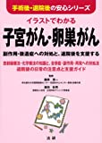 イラストでわかる 子宮がん・卵巣がん: 副作用・後遺症への対処と、退院後を支援する (手術後・退院後の安心シリーズ)