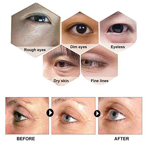 51mdk32GzmL - Eye Treatment Masks,Under Eye Patches, Anti-Aging Mask, with Hyaluronic Acid, Hydrogel, Deep Moisturizing Improves elasticity, Treatment Pads for Dark Circles, Wrinkles, Eye Bag Removal, 50 PCS