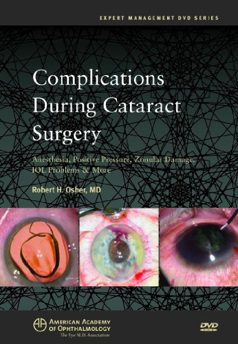 (Complications During Cataract Surgery: Anesthesia, Positive Pressure, Zonular Damage, IOL Problems and More (DVD))