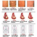 Varicose Veins Cream Relief Phlebitis Angiitis