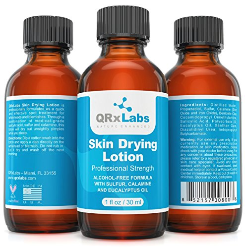 Drying Lotion - Overnight Acne & Whitehead Spot Treatment  Fights Blemishes, Pimples & Breakouts for a Clear Skin  Fast Acting Formula with Sulfur & Salicylic Acid - 1 fl oz