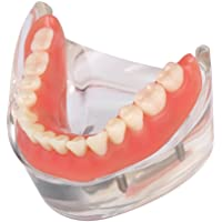 Anself Sobredentadura Dental Modelo Dental Dientes Interior Mandibular