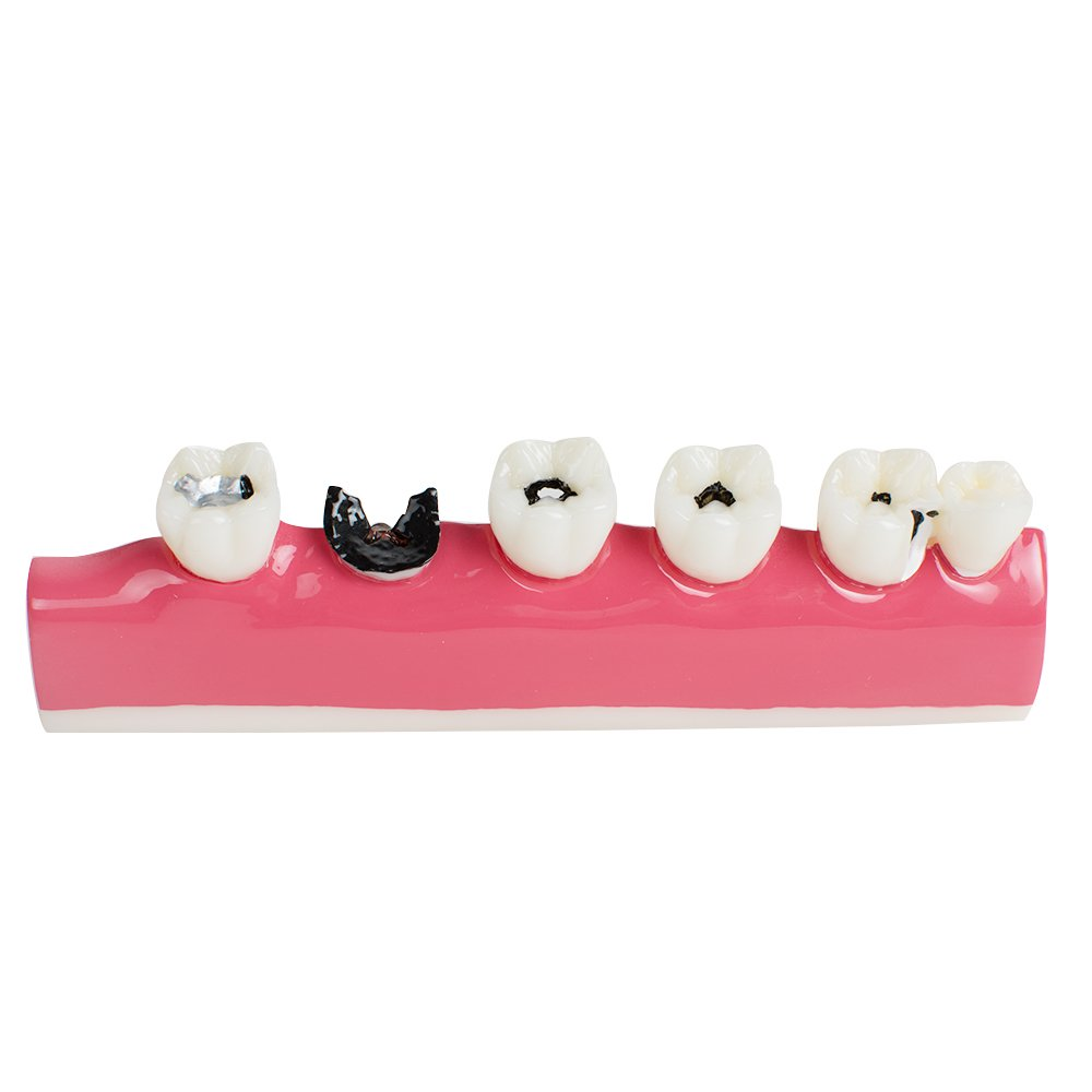 Pevor Dental Teeth Model Periodontal Disease Assort Tooth Typodont Study Teaching Model