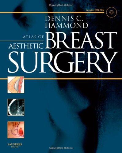 Atlas of Aesthetic Breast Surgery, 1e