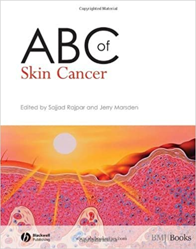 ABC of Skin Cancer (ABC Series) by Sajjad Rajpar (9-Apr-2008)