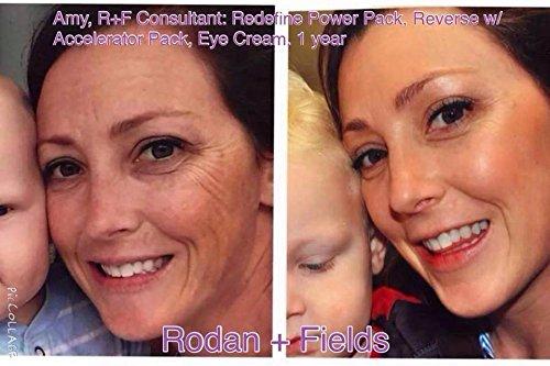 Rodan And Fields Reverse Lightening Regimen Reversetm Lightening