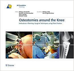 Osteotomies Around The Knee: Indications - Planning - Surgical Techniques Using Plate Fixators (AO-Publishing) Downloads Torrent