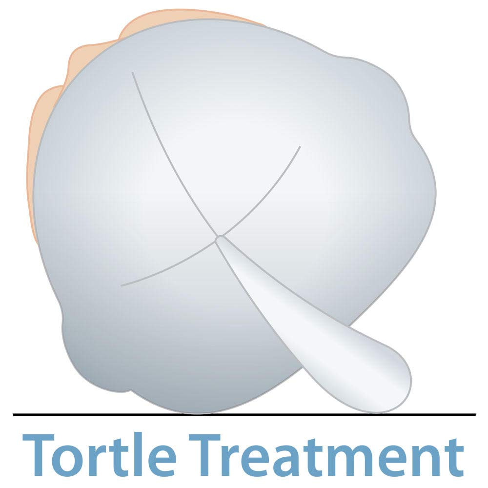 Medium 38-42 cm Tortle Lucky Elephant Adjustable Repositioning Beanie Corrective for Flat Head Syndrome
