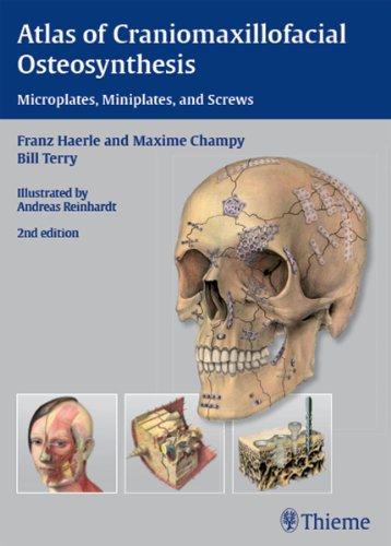 Download Atlas of Craniomaxillofacial Osteosynthesis: Microplates, Miniplates, and Screws Pdf