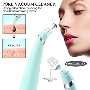 Blackhead Remover, Iwotou Electronic Vacuum Facial Pore Cleaner Diamond Microdermabrasion Device, Skin Peeling Acne Remover Comedone Suction Acne Extractor Removal Machine (Soft Blue)