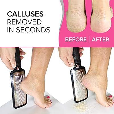 heel dead skin remover