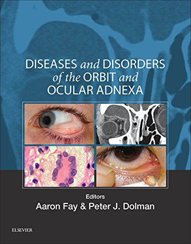 Diseases and Disorders of the Orbit and Ocular Adnexa E-Book: Expert Consult