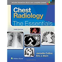 Chest Radiology: The Essentials (Essentials Series)