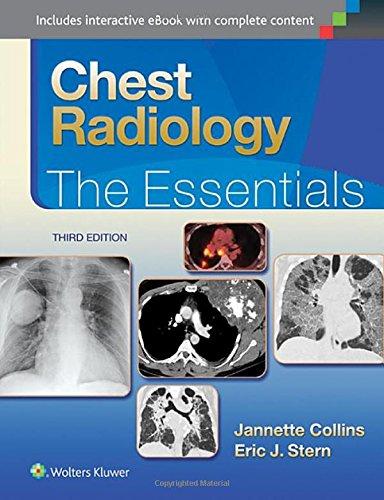 Chest Radiology: The Essentials (Essentials Series)
