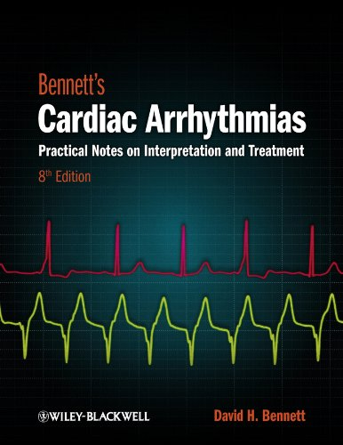 rhythmias: Practical Notes on Interpretation and Treatment (Practical Notes)