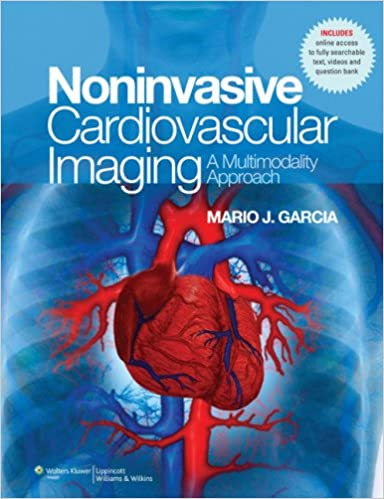 Cardiac Imaging: A Multimodality Approach