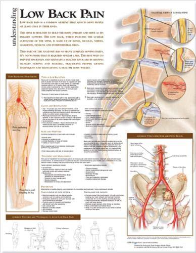 Amazon com understanding low back pain anatomical chart anatomical
