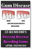 Gum Disease: 25 Remedies: Prevent & Reverse Receding Gum Disease (periodontal disease,gingivitis,gum disease,)