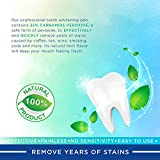 Teeth Whitening Pen - Removes Years of Stains