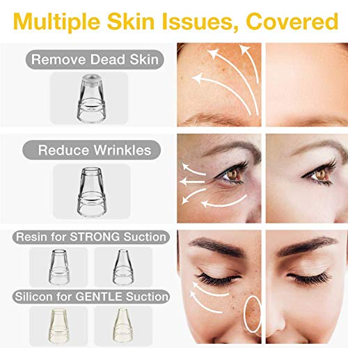 Blackhead Remover – Chamo 6 Levels Strong Suction Pore Vacuum for Nose, Face, Skin Acne Pimple w/Removal Tool (Tweezer…