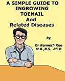 A Simple Guide to Ingrowing Toenail and other Nail Diseases (A Simple Guide to Medical Conditions)