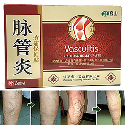 30PCS/5box Varicose Veins Cure Patch Vasculitis Natural Solution Chinese Herbal Treatment Mai Guan Yan Acid Bilges Itching