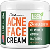 Acne Spot Treatment Cream with Tea Tree Oil - Made in USA - Treats Cystic Acne, Breakouts, Pimples, Whiteheads & Blackheads - Safe & Natural Acne Removal - Cleanser Works for Acne Scars - 2 oz