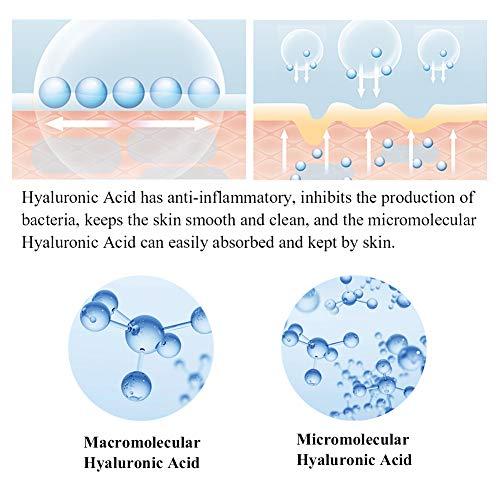 51nbDb0iVBL - Vitamin C Serum for Face and Skin - With Hyaluronic Acid, Niacinamide, Retinol - Natural Anti Aging, Anti Wrinkle Serum for Skin Brightening and Moisturizing - 1.37 Fl. Oz