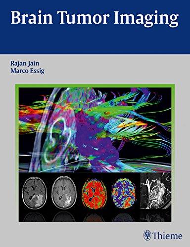 Download Brain Tumor Imaging Pdf