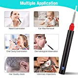 Softula Earwax Removal Tool,HD Wireless Otoscope