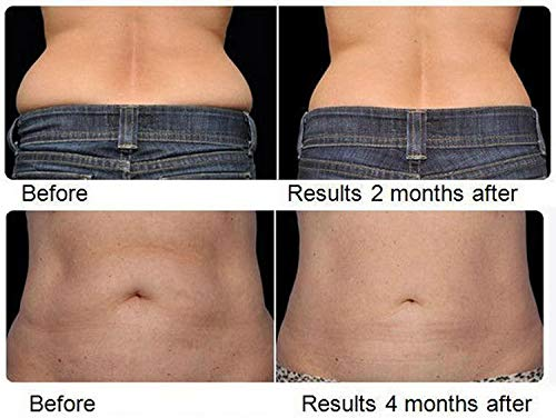 Dermapeel Home Laser Lipo Professional Machine Belt Fat Cell Reduction Cavitation Liposuction Loss Women & Men Detox Lose Inches Slimming Cellulite Fat Removal Burner Light Body Shaping Weight Loss