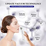Blackhead Remover Vacuum - USB Rechargeable