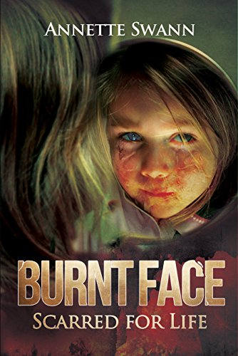 Burnt Face: Scarred for Life by [Swann, Annette]