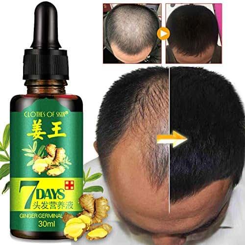 Hair Regrow 7 Day, Ginger Germinal Essential Oil Hair Growth Hair Loss Treatment Hair Care Hair Growth Serum for Men & Women 30ml
