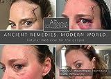 Wound Repair Skin Healing Cream by The Alchemist