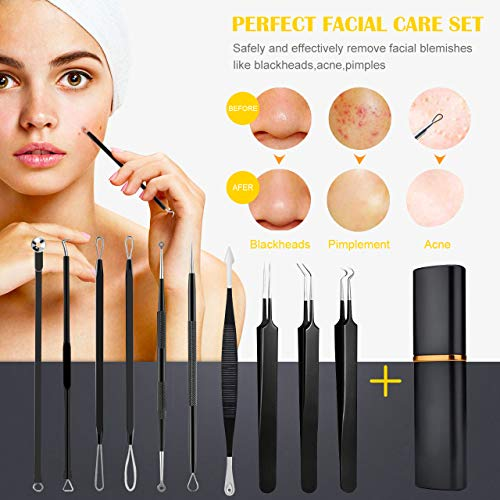 [Upgrade]Blackhead Remover Pimple, Boxoyx 10 Pcs Professional Pimple Comedone Extractor Popper Tool Acne Removal Kit - Treatment for Pimples, Blackheads, Zit Removing, Forehead,Facial and Nose(Black)