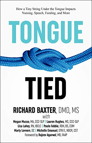 Tongue-Tied: How a Tiny String Under the Tongue Impacts Nursing, Speech, Feeding, and More ()