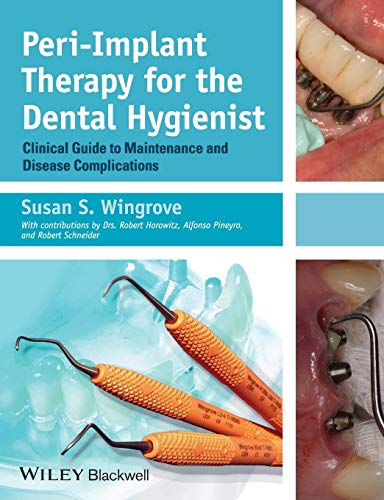 (Peri-Implant Therapy for the Dental Hygienist: Clinical Guide to Maintenance and Disease Complications)