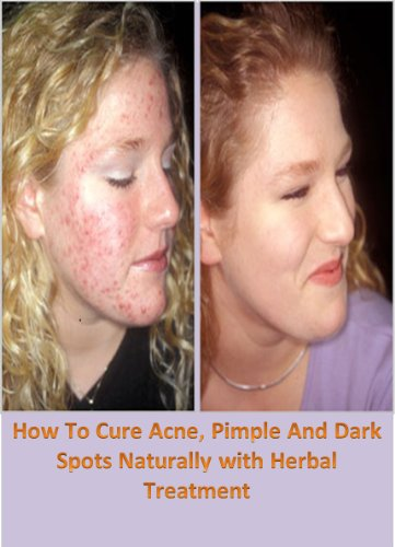 How To Cure Acne, Pimple And Dark Spots Naturally with Herbal Treatment - Perfect Spot Treatment