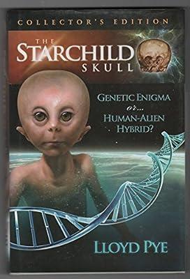 The Starchild Skull: Genetic Enigma or...Human-Alien Hybrid?