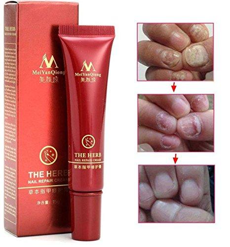 Nail Repair Cream Herbal Nail Fungus Treatment Onychomycosis Paronychia Anti Fungal