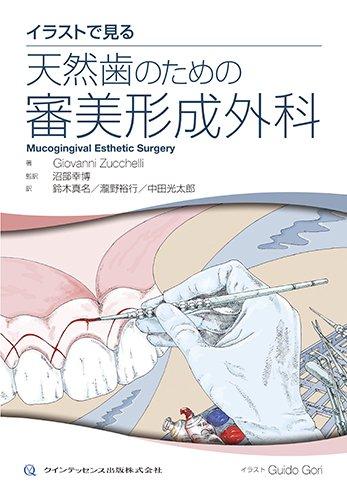 イラストで見る 天然歯のための審美形成外科