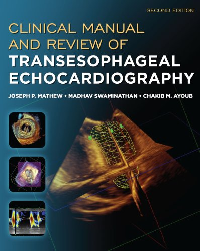 Clinical Manual and Review of Transesophageal Echocardiography, Second Edition Pdf