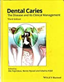 Dental Caries The Disease and Its Clinical Management