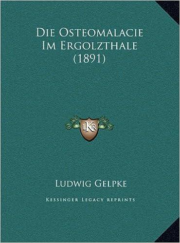 Die Osteomalacie Im Ergolzthale (1891) (German Edition): Ludwig ...