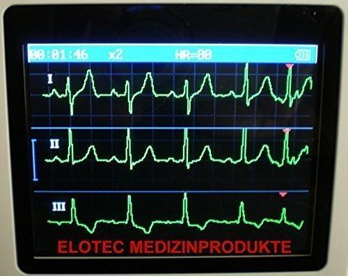 MOBILE PROFESSIONELLE EKG Geräte - 3 - 12 KANAL - DEUTSCHE AUSFÜHRUNGEN-VORHOFFLIMMERN - NEUESTES MODELL: PORTABLES HAND EKG GERÄT FÜR LANGZEIT MESSUNG 24 STD. OD. 30 SEK. SCHNELLMESSUNG NOTFALL HERZINFARKT HERZSCHMERZEN CARDIO- 1 bis 3 KANAL DARSTELLUNG-ROTE MARKIERUNG BEI ARRHYTHMIE-ARRHYTHMIEAUFLISTUNG - Hinweis: Bei uns mit neuester Ausführung mit Speicherung bis 30 Stunden! - Auf Anfrage 12 Kanal EKG Gerät Holter inkl PC Software TOPPREIS 1.945.- Euro-Speicher bis 48 Stunden-Kassenzulassung