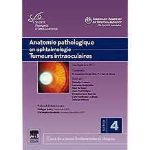 Anatomie pathologique en ophtalmologie. Tumeurs intraoculaires