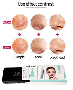 JPNK Blackhead Remover Tools 6 PCS Professional Surgical Extractor Blackhead & Blemish Remover Kit with a Leather bag